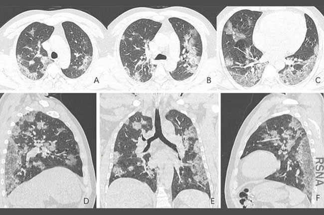 Doctors Puzzle Over COVID-19 Lung Problems