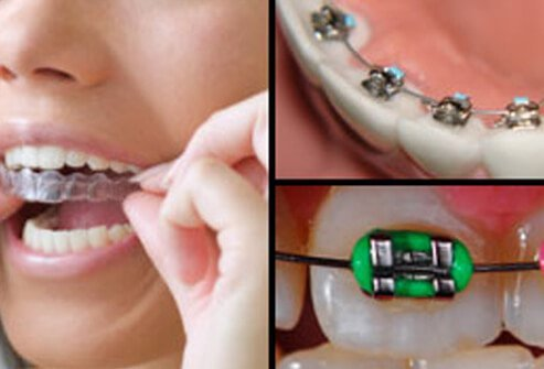 Collage of different types of braces.
