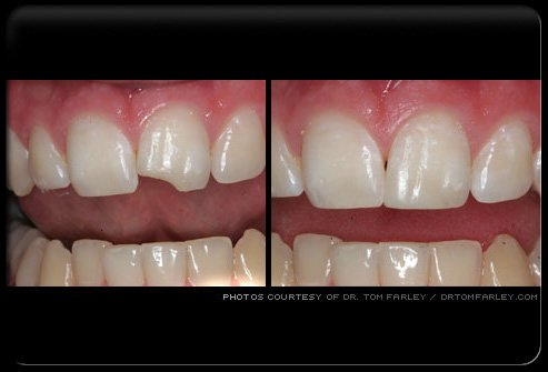A chipped tooth before and after dental bonding.