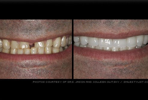 Man's smile before and after porcelain veneers.