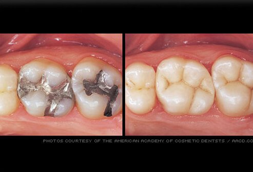Tooth-colored fillings replace amalgam fillings.