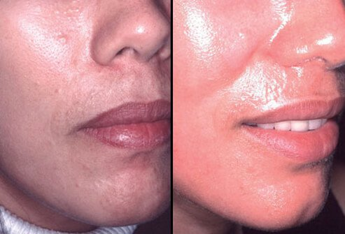 Photos of before and after laser skin resurfacing.