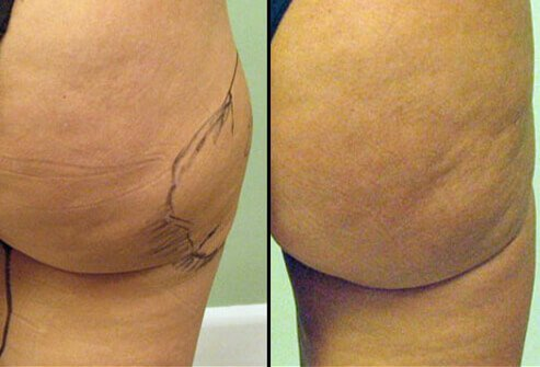 Photos of before and after liposuction.
