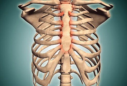 Picture of Costochondritis: Pain and Inflammation