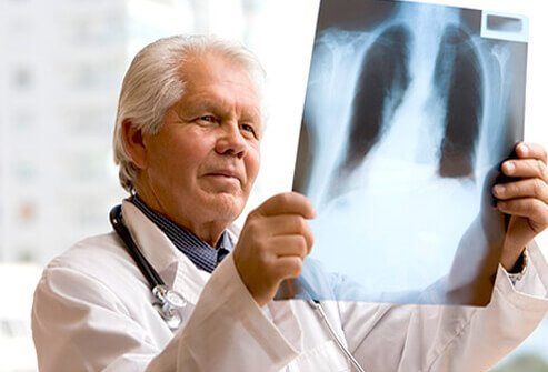 A doctor examining a chest x-ray.