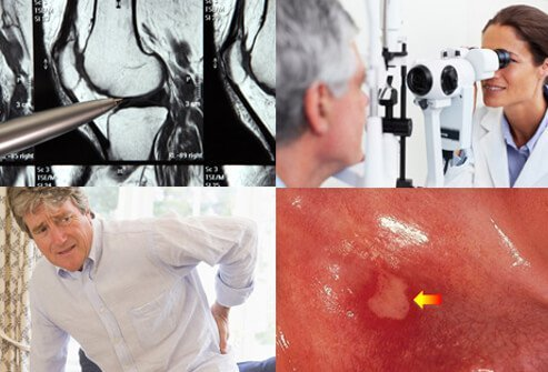Images of a bone X-Ray, eye exam, back pain, and aphthous ulcer.