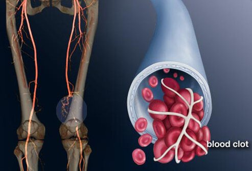 Illustration of blood clot in leg (DVT).