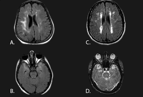 Axial FLAIR or fluid-attenuated inversion recovery image (a, b & c) and T2 weighted (d) brain MRI from patients with CADASIL.