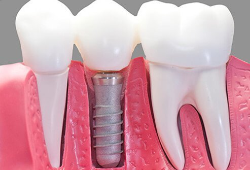 Model of dental implant.