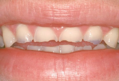 Tooth enamel erosion damaged by bulimia.