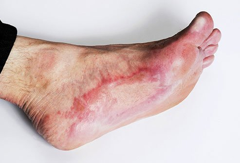 Wounds may be slower to heal with peripheral neuropathy and it increases the risk of infection.