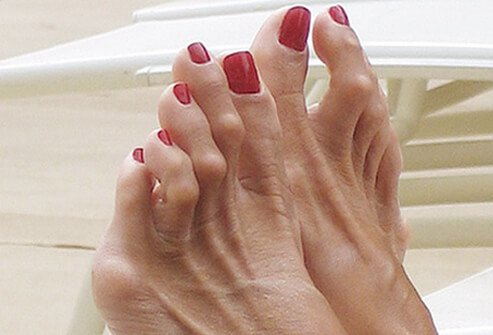 Picture of Foot Conditions and Problems – Hammertoes