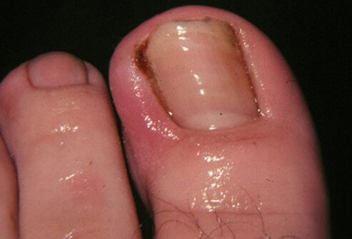 Ingrown toenails derive their name from growing into the skin along the edges of the nail.