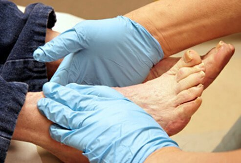 People who have diabetes should see a foot doctor (podiatrist) every 2 to 3 months, even when not experiencing foot problems.