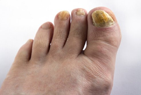 Thick, brittle, yellow-brown, or opaque nails are common with fungal nail infections.