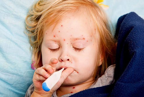 Before the vaccine was widely distributed in the late 20th century, nearly every child in America got the measles.