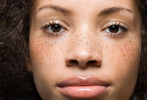 Photo of girl with freckles.