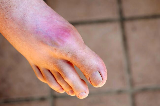 The idea that cherries might prevent attacks of gout has been around for decades.