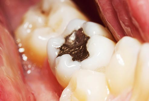 There's no link between mercury and other materials in fillings and cancer.