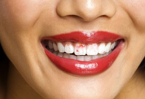 Bad breath, a hoarse or ticklish throat and lipstick getting stuck to your teeth are side effects of dry mouth.