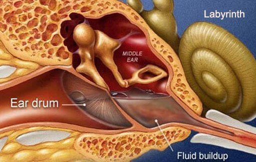 Labyrinthitis is inflammation inside the inner ear.