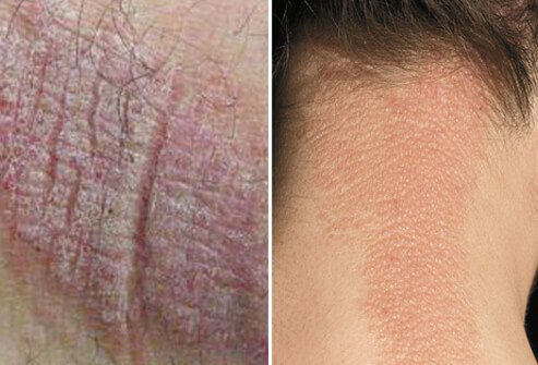 Lichen simplex chronicus, which is occasionally also known by the outdated term, localized neurodermatitis (a misnomer), appears as scaly patches of thickened, leathery skin.