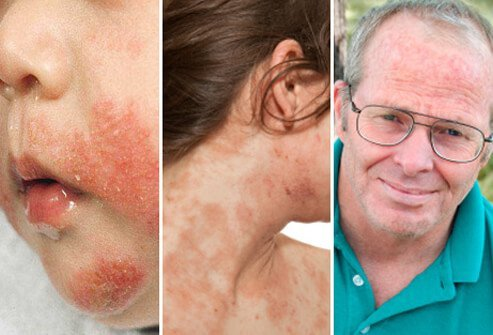 Eczema can affect people of any age, although the condition is most common in infants.