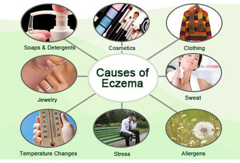 While not all of the factors that cause eczema are known, abnormal function of the immune system, gene defects, cutaneous irritants, and environmental allergens may lead to outbreaks in some people.