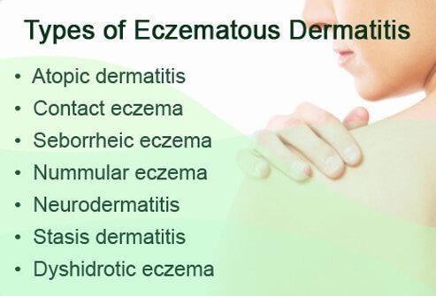 There are many types of eczema.