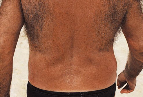 A man with a hairy back.
