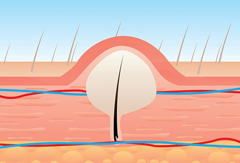 Ingrown Hair Cyst Infection: Causes,Treatment, Removal & Prevention
