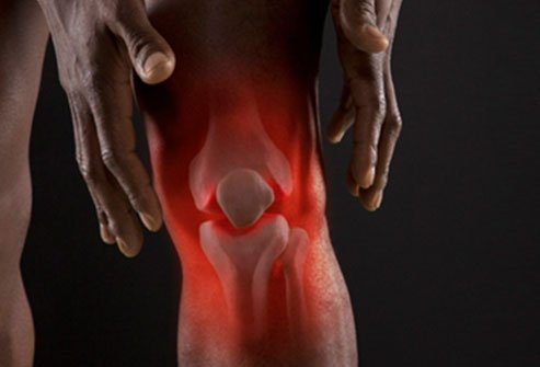 Pain In Knee Causes Of Knee Pain Knee Pain Treatment Relief