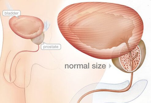 Illustration of normal prostate.