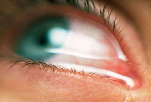 Allergic conjunctivitis symptoms vary from person to person.