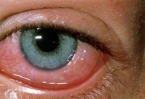 Pet dander, dust mites, and pollen are some of the causes of red eyes.