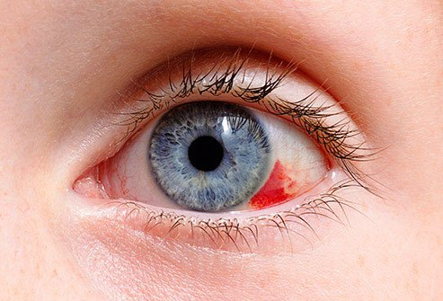 See your eye doctor as soon as possible if anything happens to your eyes.