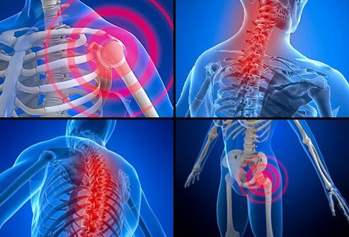 Fibromyalgia is a chronic condition that causes pain, stiffness, and tenderness of muscles, tendons, and joints.