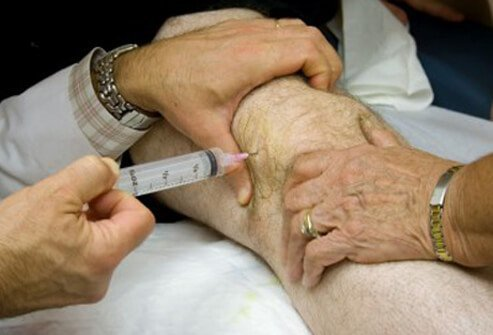 Local injections into the tender point areas can help reduce pain in fibromyalgia patients.