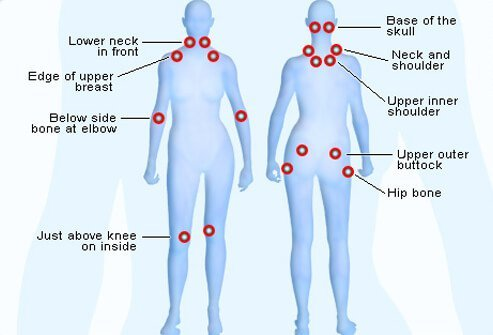 Pain affecting 18 'tender points' (nine symmetrical pairs) of the body are typical signs of fibromyalgia.