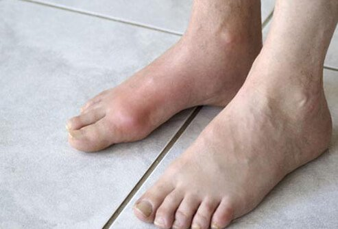 An example of big toe gout.