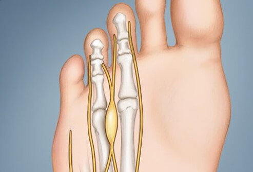 An illustration of Morton's neuroma.