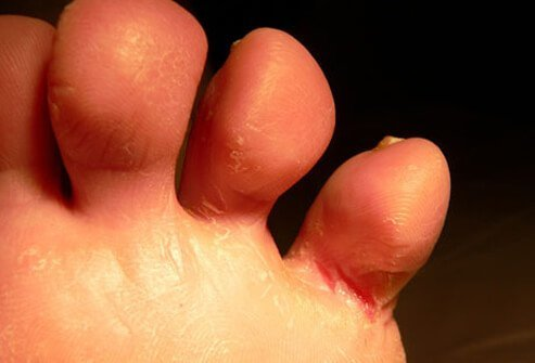 A close-up of athlete's foot.