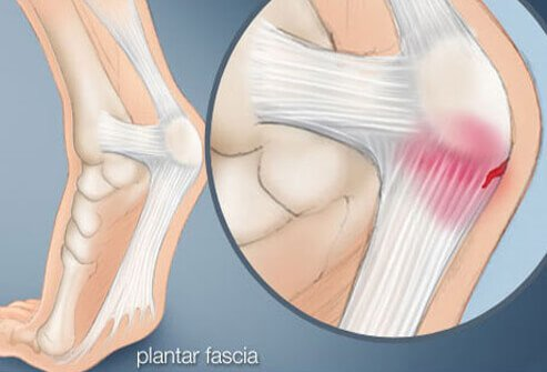 An illustration of plantar fascia.