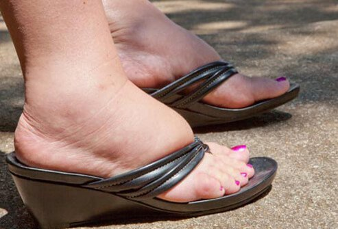 A woman has swollen feet.