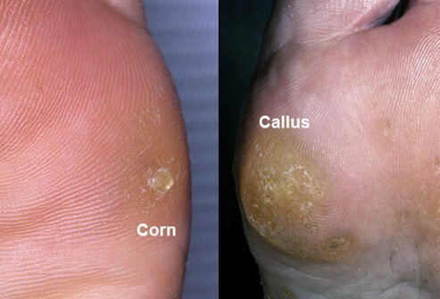 A side-by-side composite photo of corn and callus on the foot.