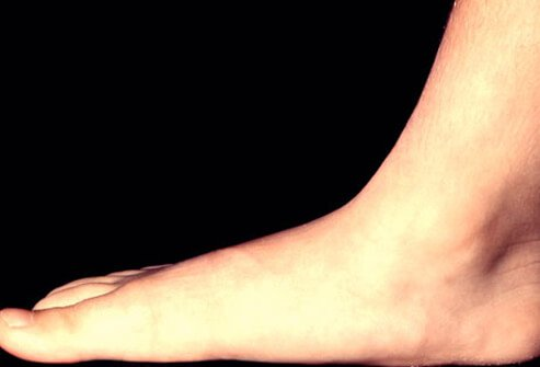 A photo of a flat foot (pen planus).