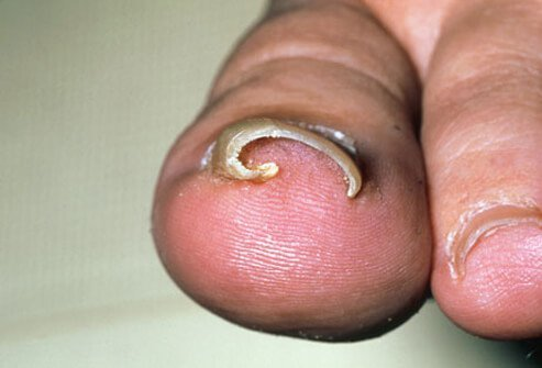 A photo of an ingrown toenail on the big toe.