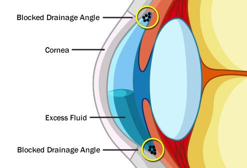 Glaucoma can result from a variety of diseases.