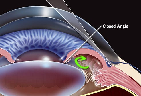 Some forms of glaucoma can come on suddenly.