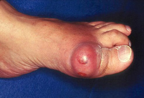 An elderly man suffers from acute gouty arthritis on his big toe.